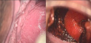 Inflamaţii ale colului uterin